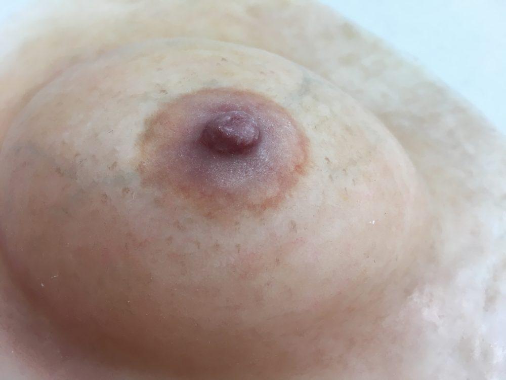 人工乳房は身体に負担をかけずにできる新しい乳房再建